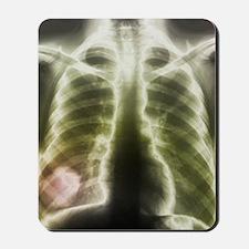 Pulmonary tapeworm cysts, X-ray Mousepad
