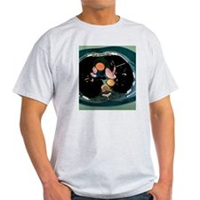Pulmonary embolism, CT scan T-Shirt