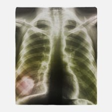 Pulmonary tapeworm cysts, X-ray Throw Blanket