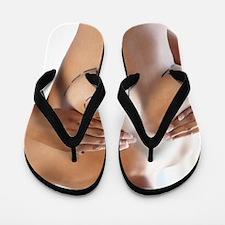 Cosmetic breast surgery Flip Flops