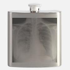 Pneumonia, X-ray Flask