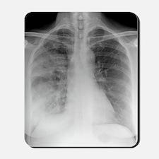 Pneumonia, X-ray Mousepad