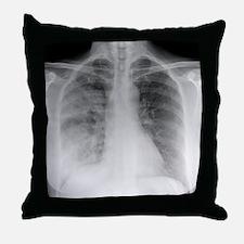 Pneumonia, X-ray Throw Pillow