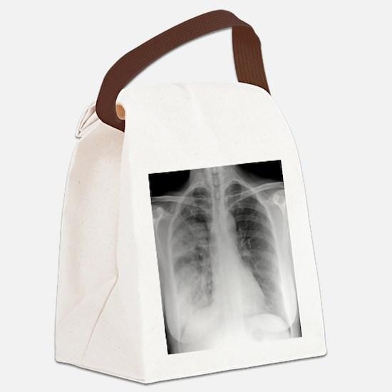 Pneumonia, X-ray Canvas Lunch Bag