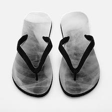 Pneumonia, X-ray Flip Flops