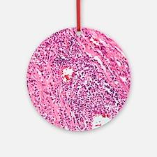 Cardiovascular syphilis, light micr Round Ornament
