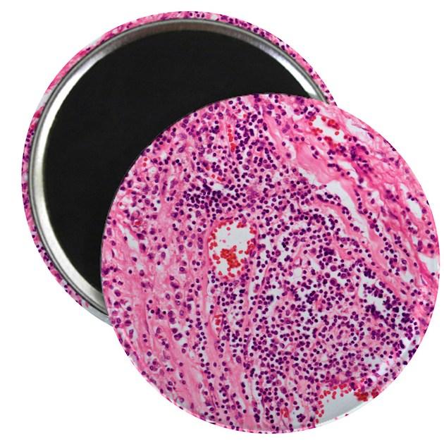Cardiovascular syphilis, light micrograph Magnet by Admin ...Cardiovascular Syphilis Unspecified