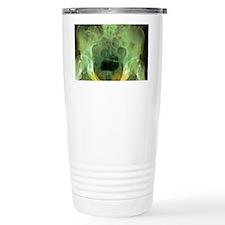 Pelvic fracture, X-ray Travel Mug