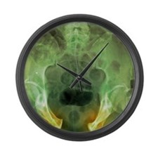 Pelvic fracture, X-ray Large Wall Clock