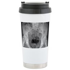 Pelvic fracture, X-ray Travel Mug