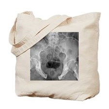 Pelvic fracture, X-ray Tote Bag