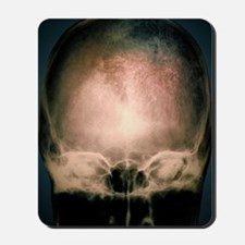 Osteoporosis in the skull, X-ray Mousepad