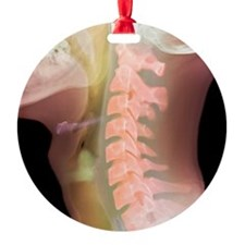 Normal neck, X-ray Ornament