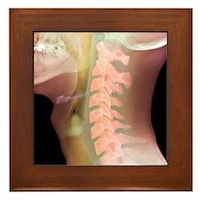 Normal neck, X-ray Framed Tile