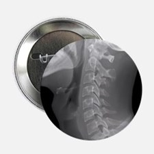 """Normal neck, X-ray 2.25"""" Button"""