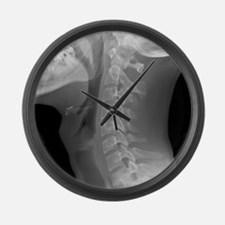 Normal neck, X-ray Large Wall Clock