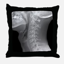 Normal neck, X-ray Throw Pillow