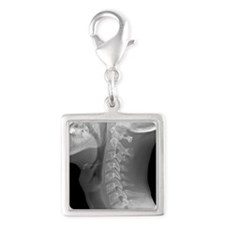 Normal neck, X-ray Silver Square Charm