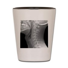 Normal neck, X-ray Shot Glass