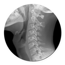 Normal neck, X-ray Round Car Magnet