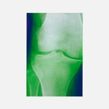 Arthrosis of the knee, X-ray Rectangle Magnet