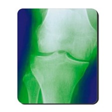 Arthrosis of the knee, X-ray Mousepad