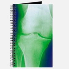 Arthrosis of the knee, X-ray Journal