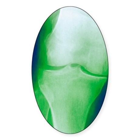 Arthrosis of the knee, X-ray Sticker (Oval)