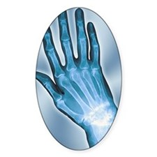Arthritic hand, X-ray Decal