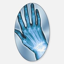 Arthritic hand, X-ray Decal