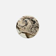 Middle ear anatomy, 1844 artwork Mini Button