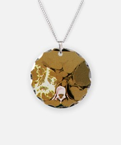 Liver cancer, CT scan Necklace