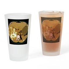 Liver cancer, CT scan Drinking Glass