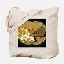 Liver cancer, CT scan Tote Bag