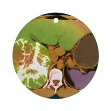 Liver cancer, CT scan Round Ornament