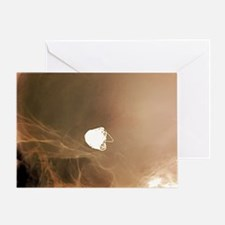 Intracranial berry aneurysm, X-ray Greeting Card