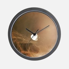 Intracranial berry aneurysm, X-ray Wall Clock