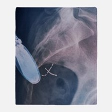 Incontinence implant, X-ray Throw Blanket