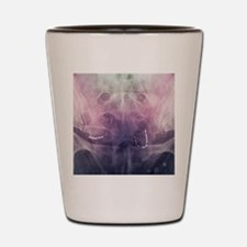 Incontinence implant, X-ray Shot Glass