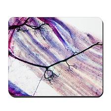 Muscle motor neurones, light micrograph Mousepad