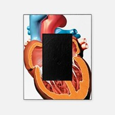 Human heart anatomy, artwork Picture Frame
