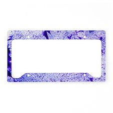 Motor neurones, light microgr License Plate Holder