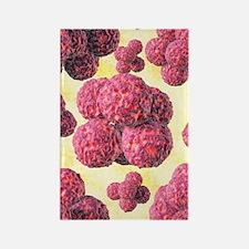 MRSA bacteria, artwork Rectangle Magnet