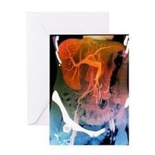Healthy liver, CT scan Greeting Card