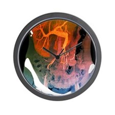 Healthy liver, CT scan Wall Clock