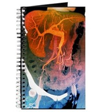 Healthy liver, CT scan Journal