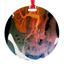 Healthy liver, CT scan Ornament