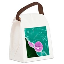 Malarial blood cell, SEM Canvas Lunch Bag