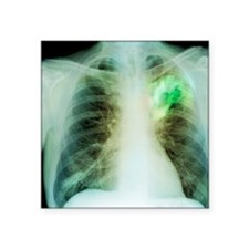 "Lung abscess, X-ray Square Sticker 3"" x 3"""