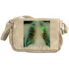 Lung abscess, X-ray Messenger Bag